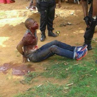 35297828_1968950689790182_881590669418692608_n  Armed Robber Dies In Prison:  Westville – KZN  An Armed Robber who was shot on h… 35297828 1968950689790182 881590669418692608 n 320x320