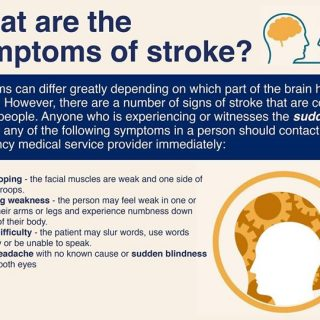 36518807_1857885137565947_8495008968580530176_o  What are the symptoms of stroke? 36518807 1857885137565947 8495008968580530176 o 320x320