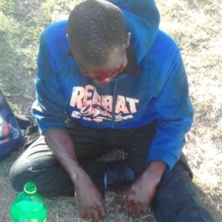 Victim Stabbed In The Face During Robbery: Phoenix – KZN  *Pictures are of a gra… 46069599 2197832526901996 5888668800135462912 n 320x320
