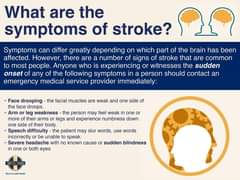 What are the symptoms of a stroke? 161867895 3939334522754321 1205024116118052831 o
